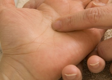 Migraine, Gastro et Herpès : le stress des mariées